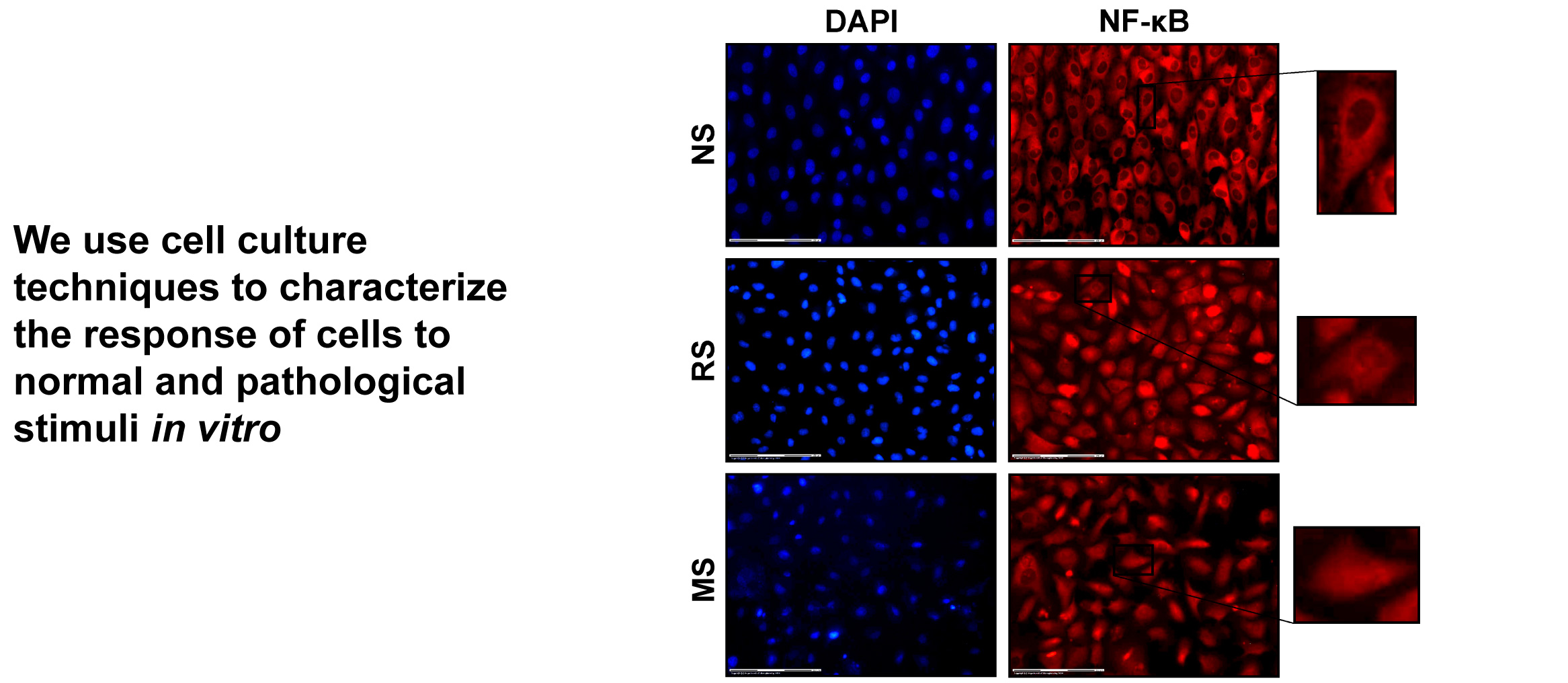 Fluorescent microscopy images of endothelial cells stained for DAPI and NF-κB after exposure to normal, reduced, and multidirectional stretch (Pedrigi et al., Ann Biomed Eng, 2017).