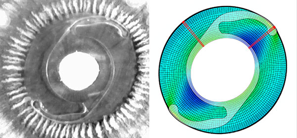 A prosthetic intraocular lens implanted into the lens capsule of a human cadaver eye and a finite element model showing the resultant stress field. Mechanical modeling can be used to characterize the mechanical environment of a tissue after surgery, which is an important determinant of the fibrotic response of inhabiting cells.