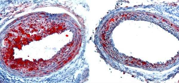 Histological sections showing atherosclerosis in the carotid arteries of hypercholesterolemic mice caused by disturbed blood flow. Atherosclerosis is regressed in the arteries of mice where laminar blood flow is restored, compared to arteries where disturbed blood flow is maintained (left versus right).
